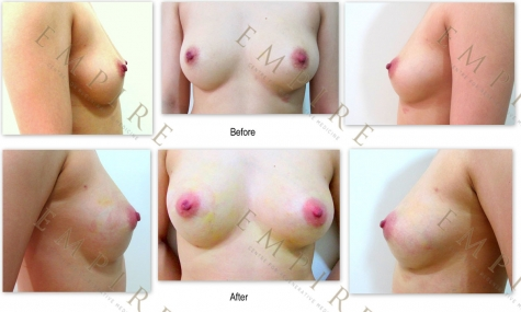 FAT GRAFTING AND BRAVA BREAST AUGMENTATION_resize