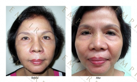 FACIAL FAT GRAFT 1_resize