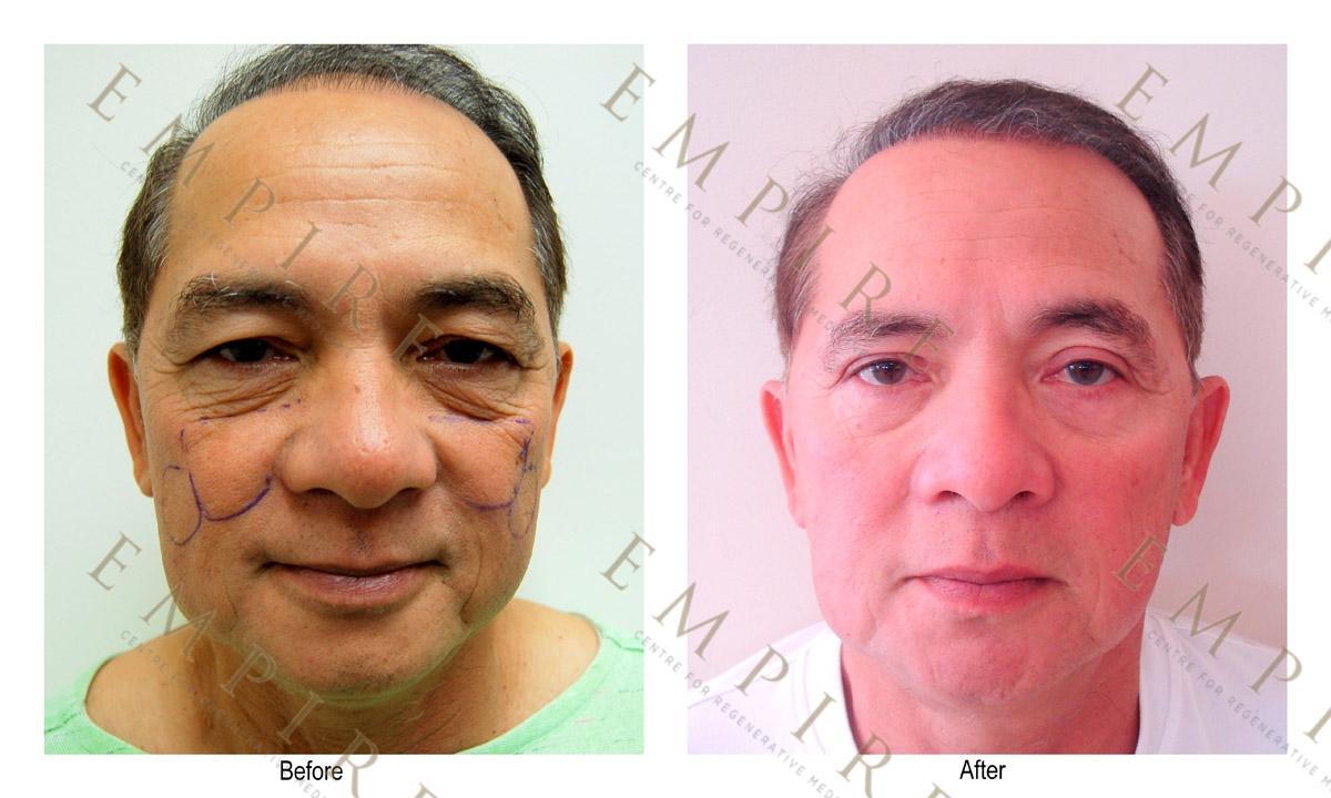 Facial bruising after fat grafting